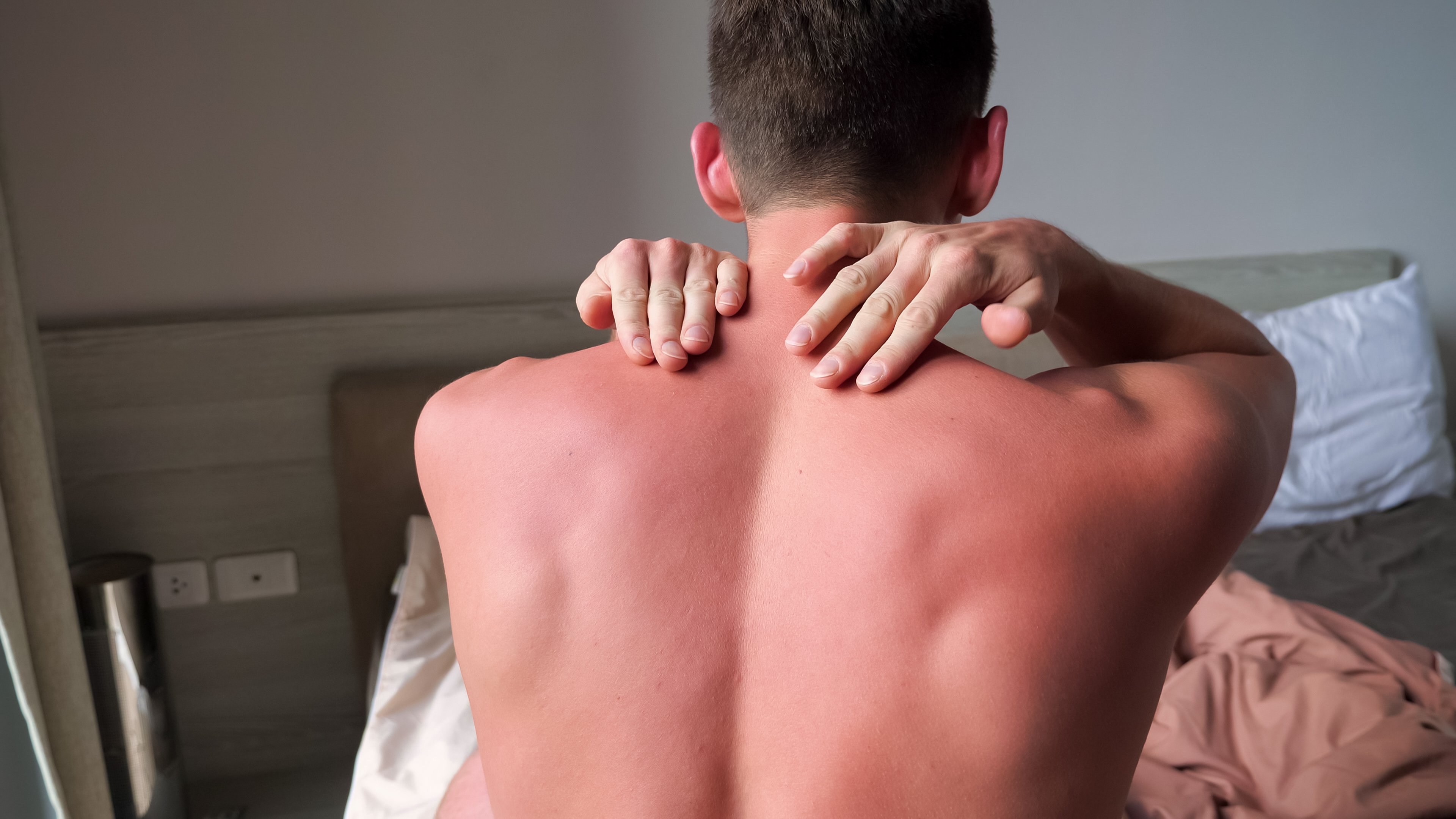 The Science Behind Sunburns